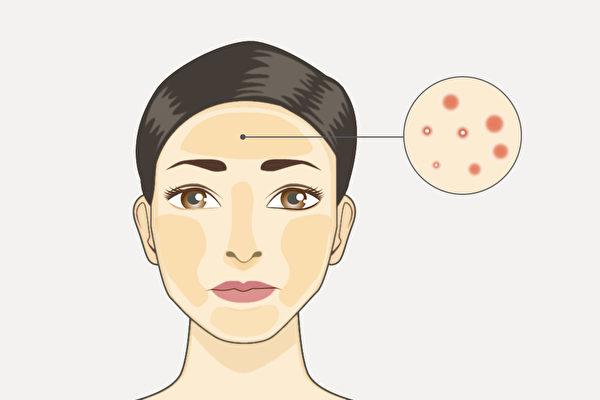 不同部位长痘,是相应的脏腑有火、热等问题,中医如何治疗痘痘?(Shutterstock/大纪元制图)