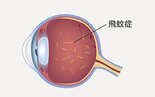 飞蚊症严格来说不是生病,是眼睛玻璃体退化。但一些症状需特别注意。(Shutterstock)