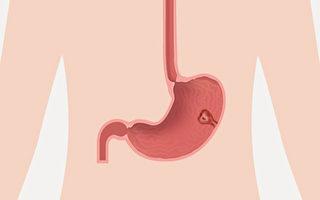 胃息肉会变成癌症吗?要不要切除?