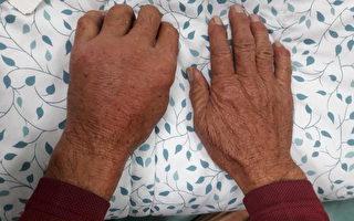 患者因染海洋分枝杆菌,左手明显肿胀。伤口久不愈合应尽快就医检查。(光田综合医院提供)