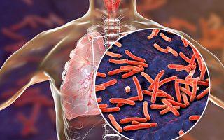 """新研究发现细菌""""超级胶水""""秘密"""