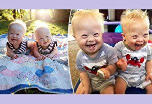 千萬分之一機率唐氏雙胞胎 爸媽稱天賜禮物