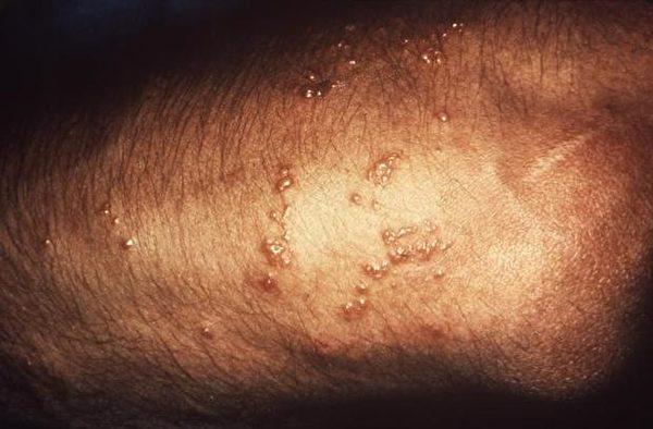接觸毒藤後的皮疹症狀。(CDC/公有領域)