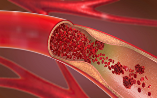 研究者找到治疗动脉硬化潜在方法