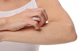 荨麻疹发作时有何症状,如何正确止痒、治疗和保养?(Shutterstock)