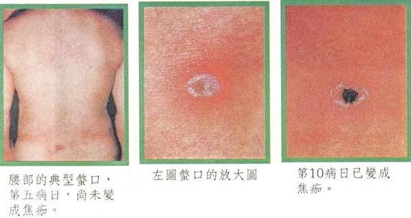 恙虫病例的焦痂症状。(花莲县卫生局提供)