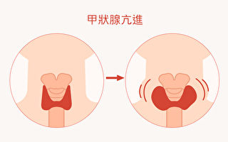 甲狀腺亢進與否,與人體狀況有絕對的關係。(Shutterstock/大紀元製圖)