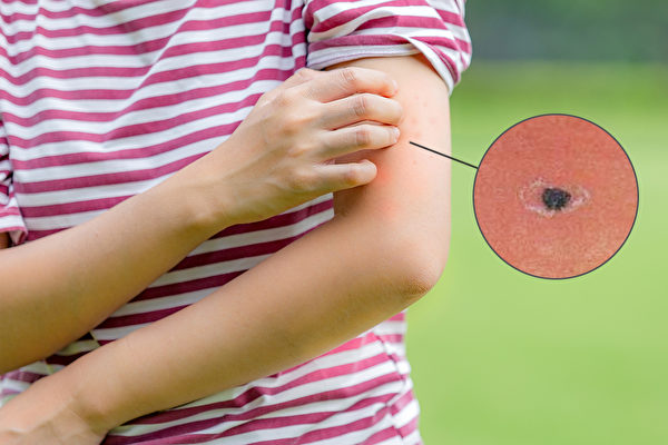 恙虫病症状是突然且持续性高烧、头痛等,叮咬处会发现焦痂。(Shutterstock/大纪元制图)