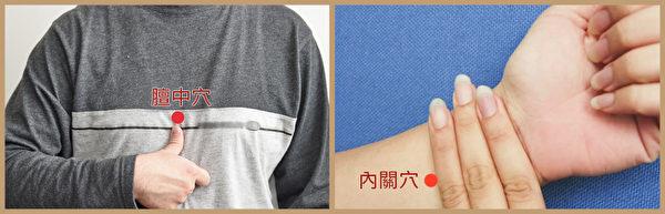 冠心病艾灸穴位:膻中穴、内关穴。(大纪元制图)