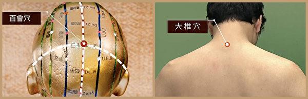 失智症艾灸穴位:百会穴、大椎穴。(谈古论今话中医/大纪元制图)
