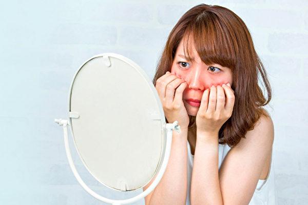 酒糟鼻常以臉頰、鼻子、前額發紅為初始症狀,中醫如何調養?(Fotolia)