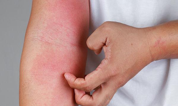 中医师崔容瑄认为,异位性皮肤炎是体内的热毒积聚所引起,5种方法可改善。(Shutterstock)