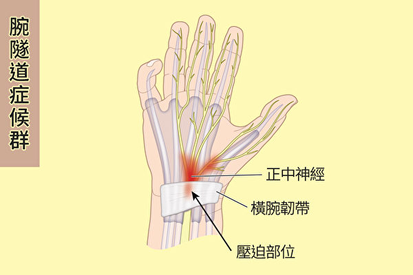 腕隧道症候群就是通過腕隧道的正中神經因為受到壓迫、壓力變大等原因受損,使大拇指、食指、中指及無名指感到麻木的情況。(Shutterstock/大紀元製圖)