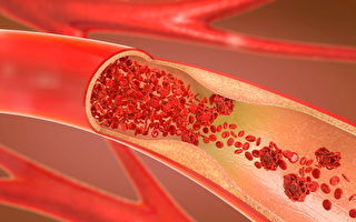 血管通了人就轻松   如何预防动脉栓塞?