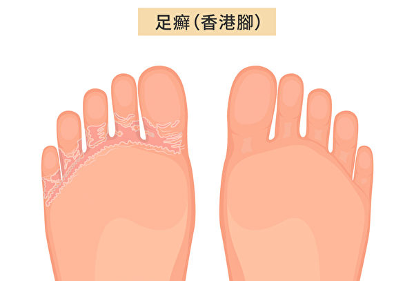 足癣(Athlete's Foot)俗称香港脚或脚气,是脚部皮肤真菌感染引起。(Shutterstock/大纪元制图)