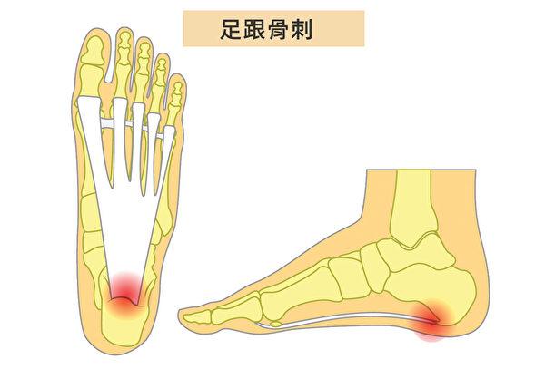 當足跟和足弓之間有鈣沉積物生長,即發生足跟骨刺(Heel Spurs),會引起腳跟劇痛。(Shutterstock/大紀元製圖)