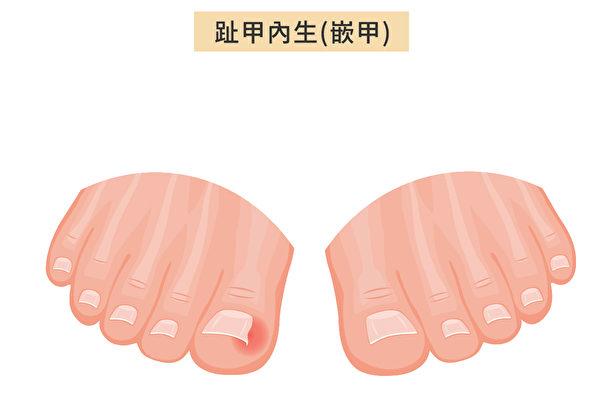 當腳趾甲開始長入兩側的趾甲槽時,即趾甲內生,或稱為嵌甲(Ingrown Toenails)。(Shutterstock/大紀元製圖)
