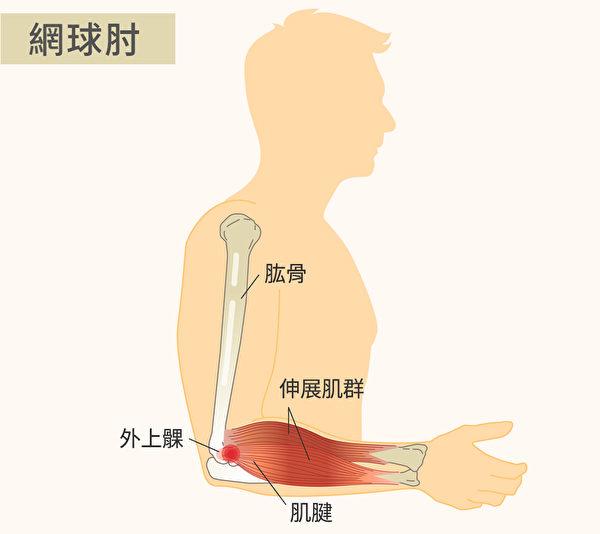 網球肘稱為「肱骨外上髁炎」。過度使用伸展腕關節或手腕伸展肌群持續用力,便容易造成肌腱受傷。(Shutterstock/大紀元製圖)