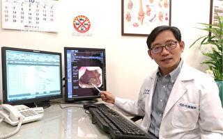 大腸癌年輕化  健康抗癌由「口」開始