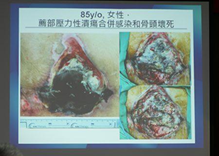竹秀一般外科医师苏启成介绍伤口负压治疗的成功案例。