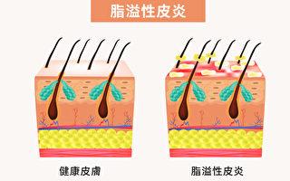 脂溢性皮炎是一種慢性皮膚病,症狀包括皮膚紅、脫屑、出油、發癢、發炎等等。(Shutterstock/大紀元製圖)