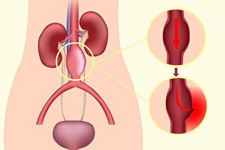 動脈瘤(aneurysm)通常是血管壁異常變薄或變弱所致。(Shutterstock/大紀元制圖)