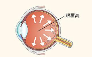 造成青光眼的常見凶手是高眼壓,中西醫如何避免眼壓高、預防青光眼?(Shutterstock/大紀元製圖)