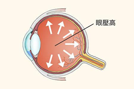 造成青光眼的常见凶手是高眼压,中西医如何避免眼压高、预防青光眼?(Shutterstock/大纪元制图)