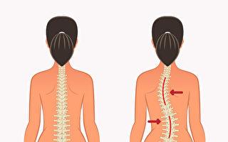 姿势不正确容易造成脊椎侧弯,如何调整?(Shutterstock)