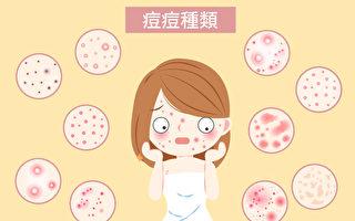 青春痘(痘痘)分不同种类和等级,严重程度和处理方法也不同。(Shutterstock/大纪元制图)