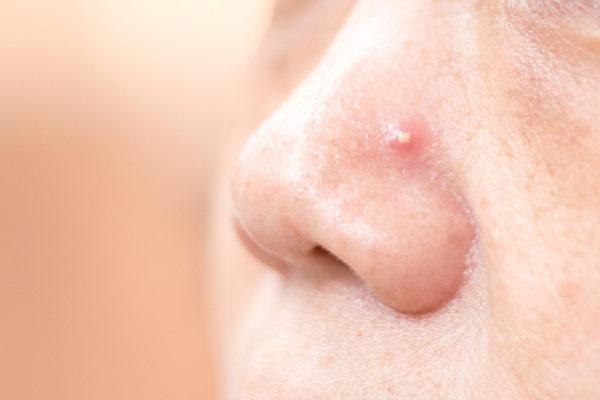 痤疮也就是青春痘,是一种慢性皮肤病,中西医如何治疗?(Shutterstock)