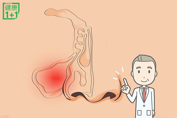鼻塞,流脓涕,暂时性嗅觉障碍,畏寒,发热,食欲不振,便秘,周身不适等是鼻窦炎典型症状。