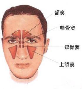 鼻窦分为上窦窦,筛窦,额窦和蝶窦四个空腔。