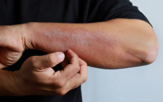进入秋冬季,很多人皮肤会干痒,甚至出现湿疹,如何保养和改善?(Shutterstock)