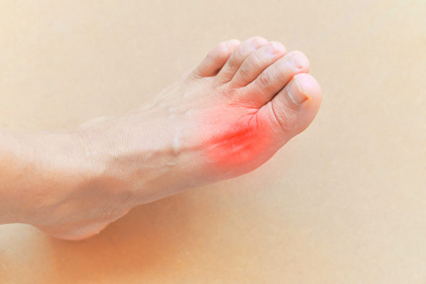 痛風俗稱「帝王病」,但現代人飲食吃得太好,越來越多的人易發痛風。(Shutterstock)