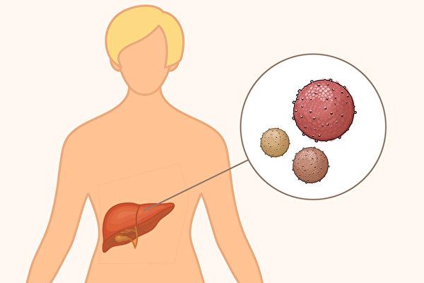 肝炎有ABCDE五種,哪些肝炎可能發展成肝癌?(Shutterstock/大紀元製圖)