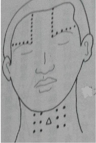 指壓頸部喉結旁1.5吋及三吋穴道。
