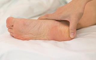 为什么会出现脚水肿,是否需要警觉?(Shutterstock)