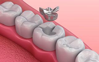 哪些情況需要補牙?關於補牙你需要了解哪些事?(Shutterstock)