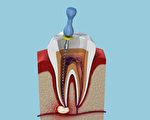 牙齒根管治療,俗稱「抽神經」,是蛀牙的治療方法之一。(Shutterstock)