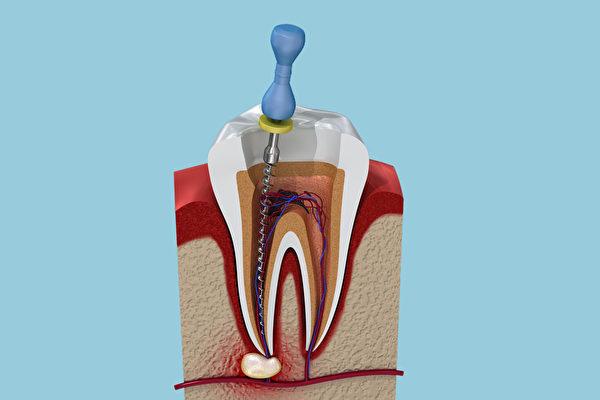 牙齒抽神經就「死」了嗎?根管治療3問答