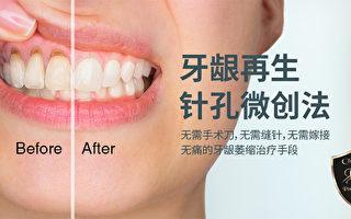 針孔微創法-無痛治療牙齦萎縮