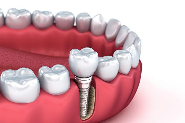 TCI舒眠麻醉治療方法的出現,減輕了植牙和看牙醫的痛苦。(Shutterstock)