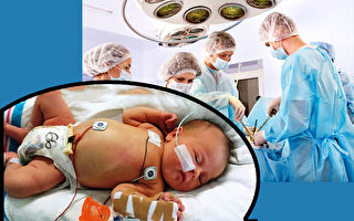 6个月大宝宝开二次心臓手术 第一次展开灿烂微笑