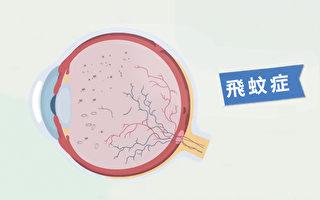飛蚊症是玻璃體裡有懸浮物質,一個簡單的動作可以改善症狀。(胡乃文開講提供)