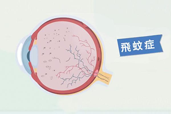 飞蚊症是玻璃体里有悬浮物质,一个简单的动作可以改善症状。(胡乃文开讲提供)