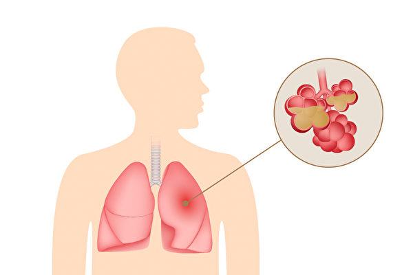肺炎通常會帶來哪些症狀、有哪些原因引起?(Shutterstock)