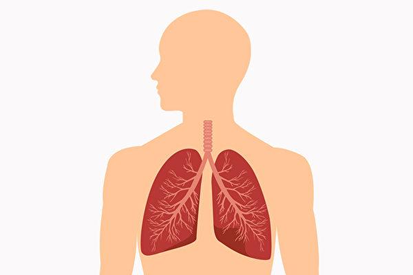 """特发性肺纤维化(IPF)又名菜瓜布肺,被称作""""沉默的非癌杀手""""。(Shutterstock)"""