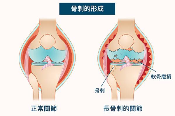 骨刺是關節面軟骨經受磨損、破壞,促使骨質發生不正常修補、硬化和增生。(Shutterstock/大紀元製圖)