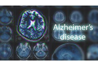 阿茲海默症篩查獲突破:血液檢測tau蛋白